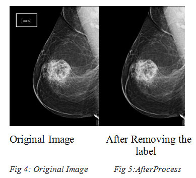 Breast Cancer Detection using Image Processing Techniques
